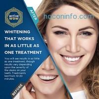 ihocon: Active Wow Teeth Whitening Premium Kit