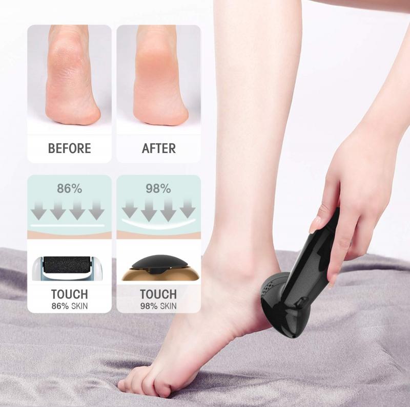 ihocon: Coco Skin Electric Callus Remover 電動去腳部硬皮器